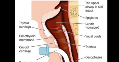 Tracheostomy_ORIGINAL_460x261