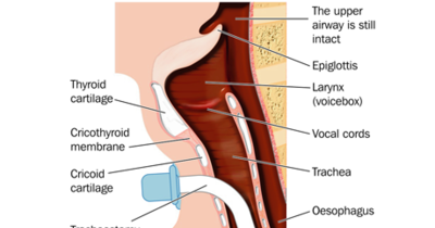 Tracheostomy_ORIGINAL_460x261